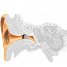 Слуховой аппарат Bernafon Juna 7-IIC, изображение 3