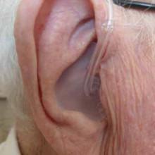 Индивидуальный ушной вкладыш из мягкого материала, изображение 3